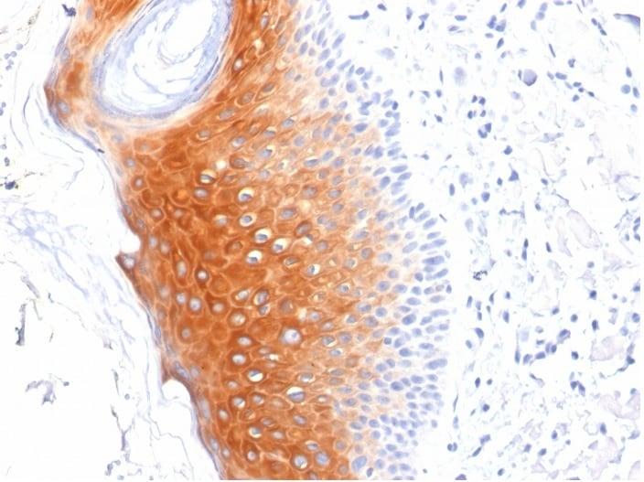 Immunohistochemistry (Formalin/PFA-fixed paraffin-embedded sections) - Anti-Cytokeratin 1+10+11 antibody [LHK1] - BSA and Azide free (ab270280)