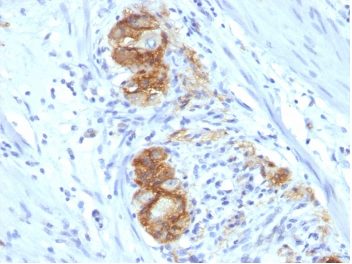 Immunohistochemistry (Formalin/PFA-fixed paraffin-embedded sections) - Anti-NCAM1 antibody [123C3.D5] - BSA and Azide free (ab270283)