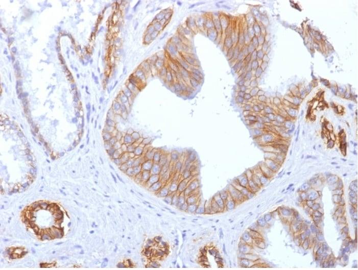 Immunohistochemistry (Formalin/PFA-fixed paraffin-embedded sections) - Anti-E Cadherin antibody [SPM471] (ab270288)