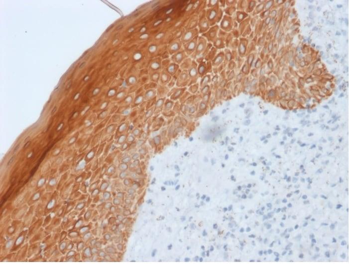 Immunohistochemistry (Formalin/PFA-fixed paraffin-embedded sections) - Anti-Cytokeratin 5 + 6 + 18 antibody [LP34] - BSA and Azide free (ab270290)