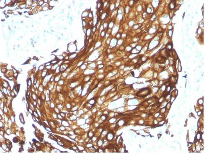 Immunohistochemistry (Formalin/PFA-fixed paraffin-embedded sections) - Anti-pan Cytokeratin antibody [KRTL/1577R] - BSA and Azide free (ab270305)