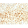 Immunohistochemistry (Formalin/PFA-fixed paraffin-embedded sections) - Anti-ADFP antibody [ADFP/2755R] - BSA and Azide free (ab270306)