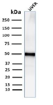 Western blot - Anti-ADFP antibody [ADFP/2755R] - BSA and Azide free (ab270306)