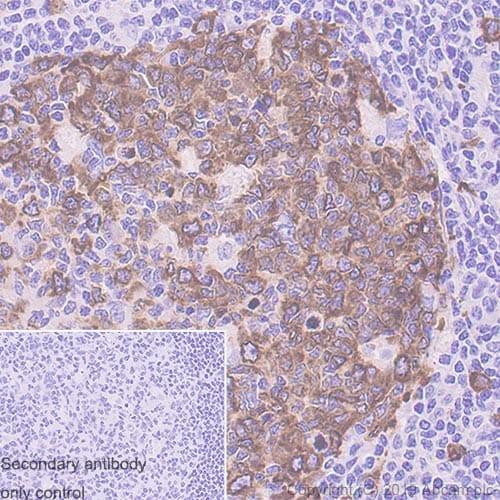 Immunohistochemistry (Formalin/PFA-fixed paraffin-embedded sections) - Anti-Eg5 antibody [EPR23277-60] - BSA and Azide free (ab270409)