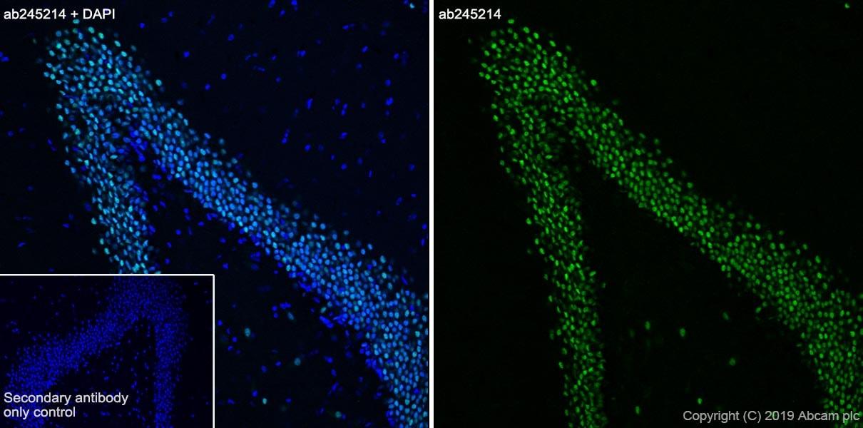 Immunohistochemistry (Frozen sections) - Anti-CEBP Delta/CEBPD antibody [EPR23518-259] - BSA and Azide free (ab270410)