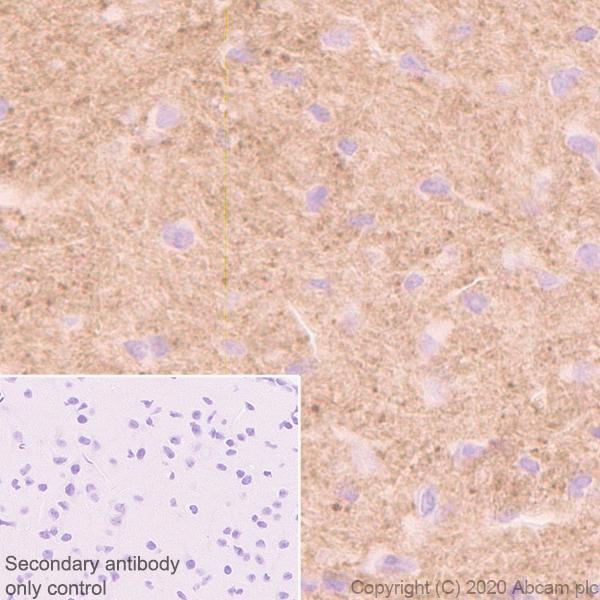 Immunohistochemistry (Formalin/PFA-fixed paraffin-embedded sections) - Anti-Versican antibody [EPR23374-151] (ab270445)