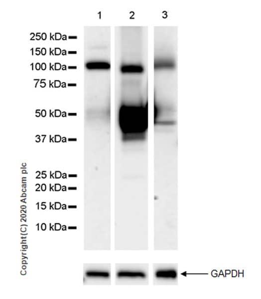 Western blot - Anti-Serpin A5 antibody [EPR23337-69] (ab270450)