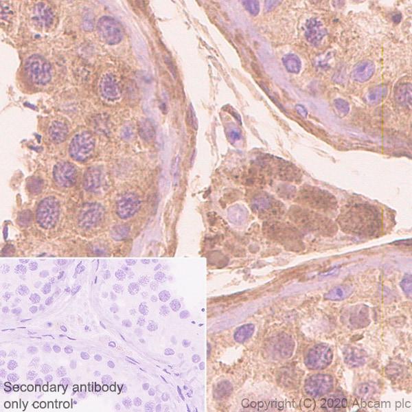 Immunohistochemistry (Formalin/PFA-fixed paraffin-embedded sections) - Anti-Serpin A5 antibody [EPR23337-112] (ab270451)