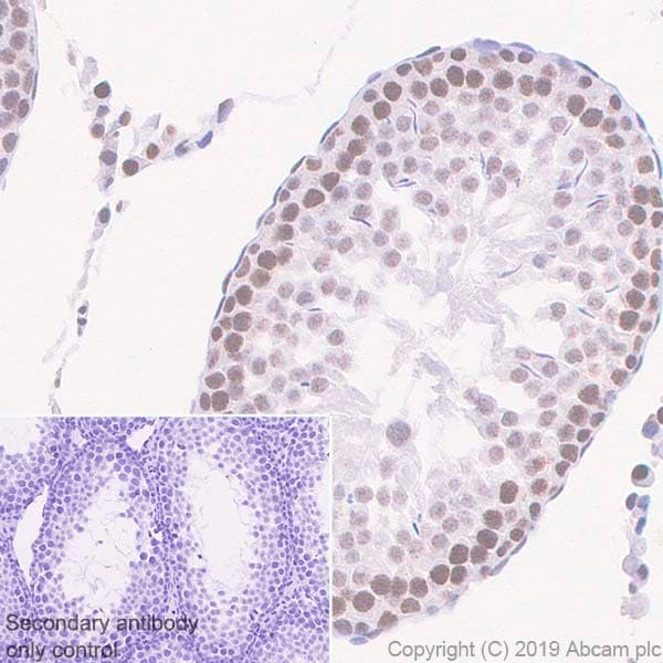 Immunohistochemistry (Formalin/PFA-fixed paraffin-embedded sections) - Anti-HIF1 beta antibody [EPR23106-151] (ab270520)