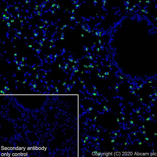 Immunohistochemistry (Frozen sections) - Anti-Prosurfactant Protein C antibody [EPR19839-8] (ab270521)