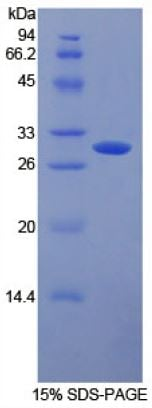SDS-PAGE - Recombinant human CD32A protein (Tagged) (ab270596)