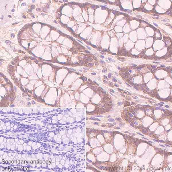 Immunohistochemistry (Formalin/PFA-fixed paraffin-embedded sections) - Anti-TFEB antibody [EPR22940-151] (ab270604)