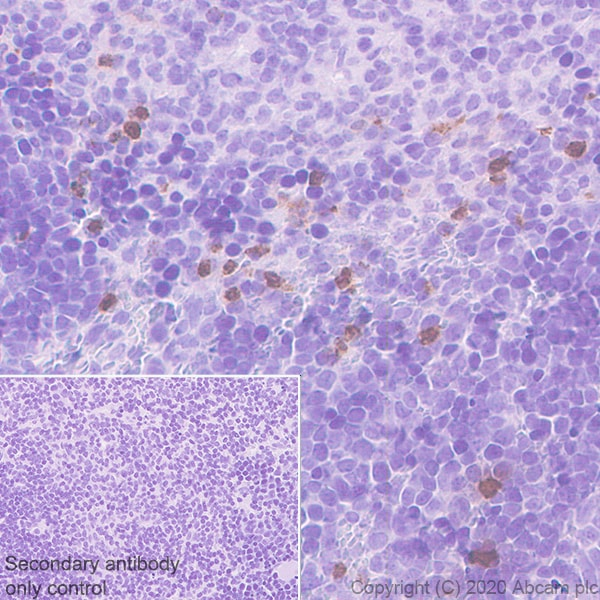 Immunohistochemistry (Formalin/PFA-fixed paraffin-embedded sections) - Anti-PR3 antibody [EPR23253-35] - BSA and Azide free (ab270610)
