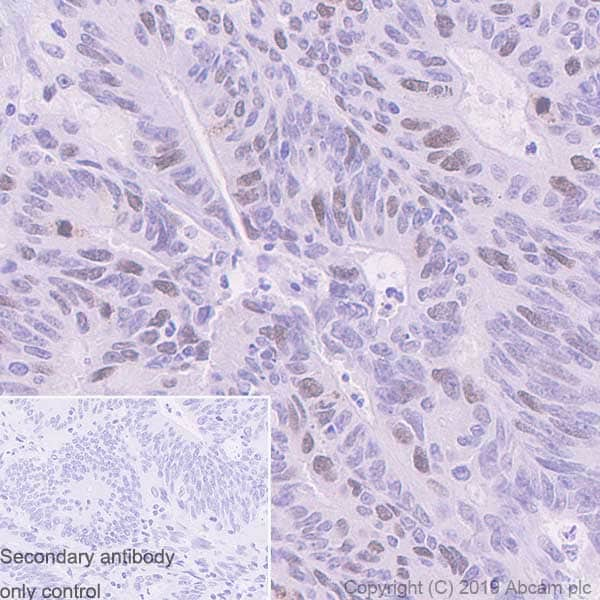 Immunohistochemistry (Formalin/PFA-fixed paraffin-embedded sections) - Anti-TPX2 antibody [EPR23182-47] - BSA and Azide free (ab270613)
