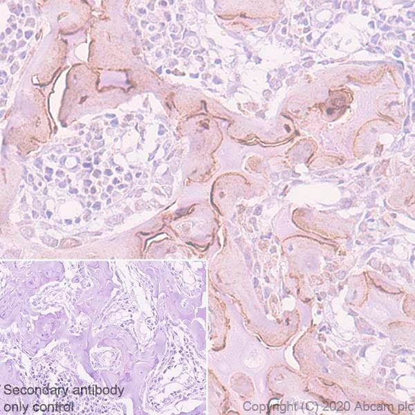 Immunohistochemistry (Formalin/PFA-fixed paraffin-embedded sections) - Anti-Bone Sialoprotein antibody [EPR23243-30] - BSA and Azide free (ab270615)
