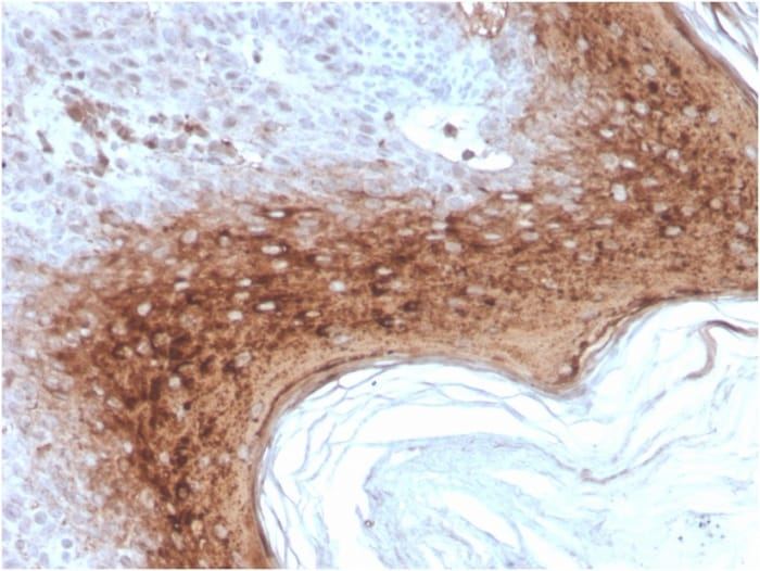 Immunohistochemistry (Formalin/PFA-fixed paraffin-embedded sections) - Anti-Involucrin antibody [rIVRN/827] (ab270720)