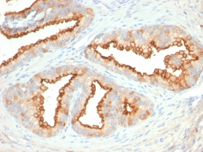 Immunohistochemistry (Formalin/PFA-fixed paraffin-embedded sections) - Anti-CD10 antibody [MME/2579] (ab270722)
