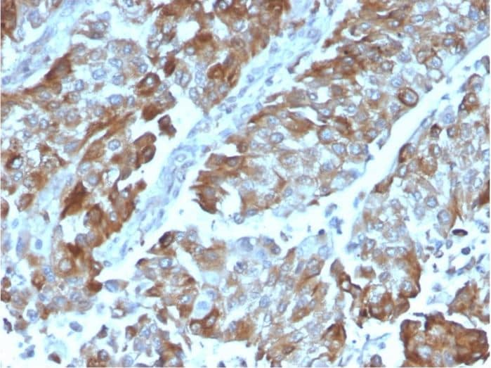 Immunohistochemistry (Formalin/PFA-fixed paraffin-embedded sections) - Anti-CD134 / OX40L receptor antibody [OX40/3108] (ab270727)