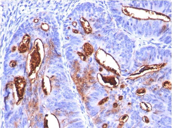 Immunohistochemistry (Formalin/PFA-fixed paraffin-embedded sections) - Anti-CA19-9 antibody [SPM588] (ab270734)