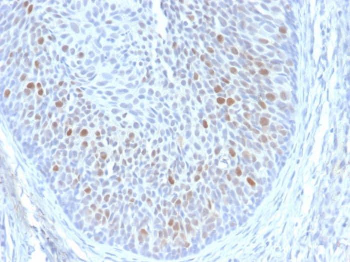 Immunohistochemistry (Formalin/PFA-fixed paraffin-embedded sections) - Anti-HPV16 E1+E4 antibody [HPV16 E1/E4] (ab270738)