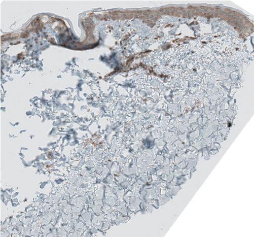 Immunohistochemistry (Formalin/PFA-fixed paraffin-embedded sections) - Anti-GREB1 antibody (ab270741)