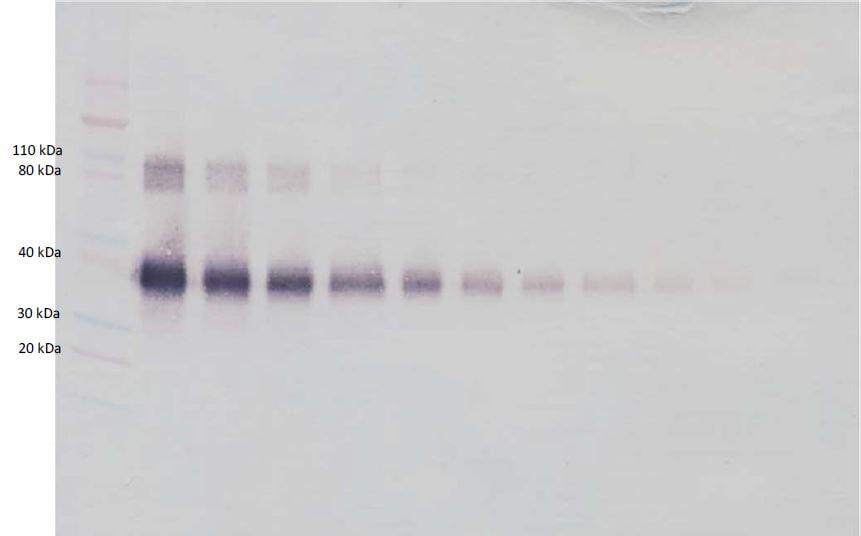 Western blot - Anti-IL-2 Receptor alpha antibody (Biotin) (ab271230)