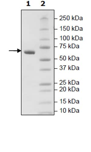 SDS-PAGE - Recombinant Human CD2 protein (Tagged) (ab271411)