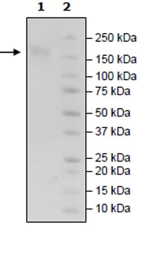 SDS-PAGE - Recombinant Human CD96 protein (Tagged) (ab271454)