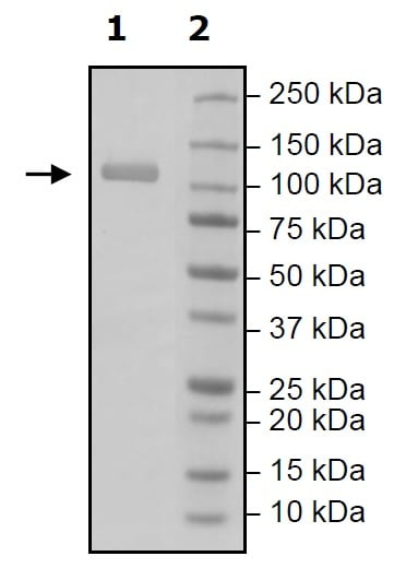 Western blot - Recombinant Human RIG-I/DDX58 protein (Tagged) (ab271486)