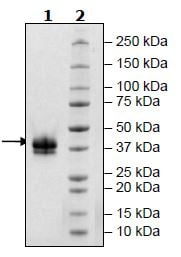 SDS-PAGE - Recombinant Human soluble IL2 Receptor beta protein (Tagged) (ab271552)
