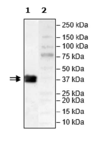 Western blot - Recombinant Human JAK2 protein (Tagged) (Biotin) (ab271565)