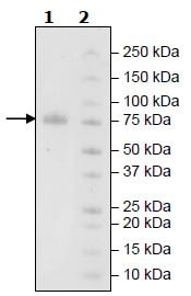 SDS-PAGE - Recombinant Human KIR2DL2 protein (Tagged) (ab271575)