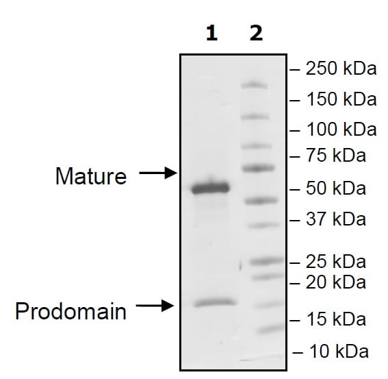 SDS-PAGE - Recombinant Mouse PCSK9 protein (Tagged) (ab271654)