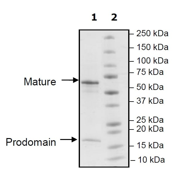SDS-PAGE - Recombinant Rat PCSK9 protein (Tagged) (ab271655)