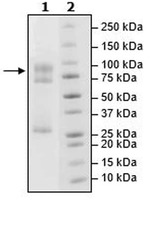 SDS-PAGE - Recombinant human STK33 protein (Active) (ab271749)