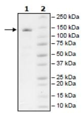 SDS-PAGE - Recombinant Human ZCH11 protein (Tagged) (ab271776)