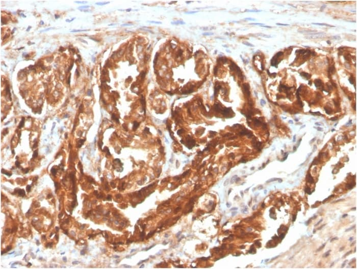 Immunohistochemistry (Formalin/PFA-fixed paraffin-embedded sections) - Anti-CD47 antibody [CD47/2937] (Biotin) (ab271823)