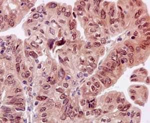Immunohistochemistry (Formalin/PFA-fixed paraffin-embedded sections) - Anti-Estrogen Receptor alpha antibody [E115] - BSA and Azide free (ab271827)