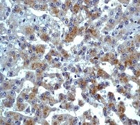 Immunohistochemistry (Formalin/PFA-fixed paraffin-embedded sections) - Anti-CCR3 antibody [Y31] - BSA and Azide free (ab271832)
