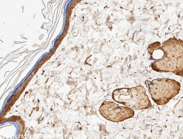 Immunohistochemistry (Formalin/PFA-fixed paraffin-embedded sections) - Anti-EGFR antibody [E114] - BSA and Azide free (ab271834)