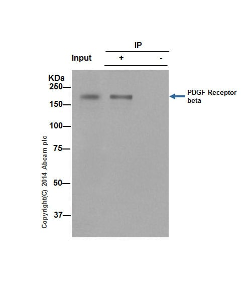 Immunoprecipitation - Anti-PDGFR beta antibody [Y92] - BSA and Azide free (ab271835)