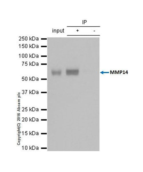 Immunoprecipitation - Anti-MMP14 antibody [EP1264Y] - BSA and Azide free (ab271840)
