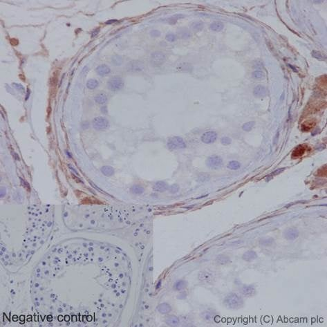 Immunohistochemistry (Formalin/PFA-fixed paraffin-embedded sections) - Anti-MMP1 antibody [EP1247Y] - BSA and Azide free (ab271845)
