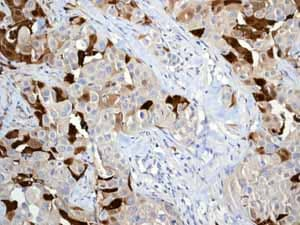 Immunohistochemistry (Formalin/PFA-fixed paraffin-embedded sections) - Anti-MRP8 antibody [EPR3554] - BSA and Azide free (ab271863)