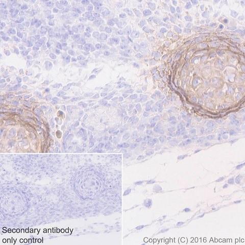Immunohistochemistry (Formalin/PFA-fixed paraffin-embedded sections) - Anti-Tenascin C antibody [EPR4219] - BSA and Azide free (ab271877)