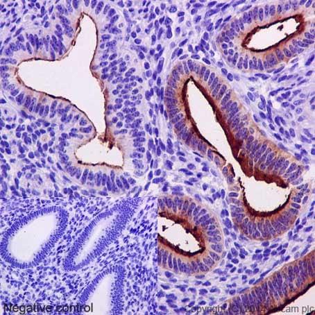 Immunohistochemistry (Formalin/PFA-fixed paraffin-embedded sections) - Anti-MUC1 antibody [EPR1023] - BSA and Azide free (ab271879)