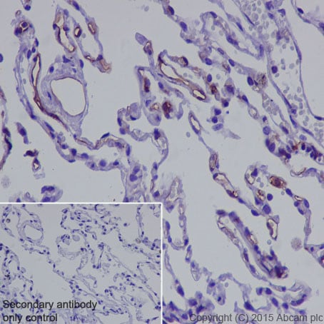 Immunohistochemistry (Formalin/PFA-fixed paraffin-embedded sections) - Anti-Thrombomodulin antibody [EPR4051] - BSA and Azide free (ab271880)