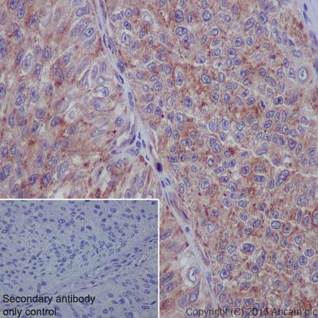Immunohistochemistry (Formalin/PFA-fixed paraffin-embedded sections) - Anti-TWEAKR/FN14 antibody [EPR3179] - BSA and Azide free (ab271881)