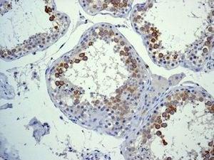 Immunohistochemistry (Formalin/PFA-fixed paraffin-embedded sections) - Anti-CD168 antibody [EPR4054] - BSA and Azide free (ab271887)