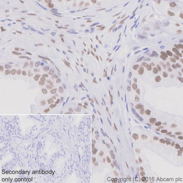 Immunohistochemistry (Formalin/PFA-fixed paraffin-embedded sections) - Anti-Androgen Receptor antibody [EPR1535(2)] - BSA and Azide free (ab271891)
